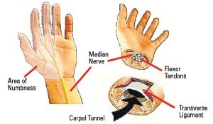 Stocking Glove Neuropathy