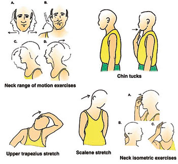 spondylothesis exercises avoid Famous physical therapists bob schrupp and brad heineck demonstrate 4 exercises brad uses to reduce the pain of his spondylolisthesis brad has been using these exercises.