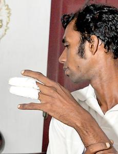 'Hot' phone burns mobile user's hand