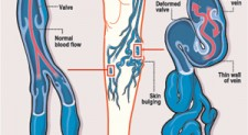 Bye-bye to varicose veins with little pain