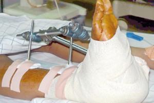 injured-leg