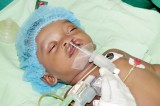 Cleft lip and palate repair surgery unit in Vavuniya, a relief to poor parents