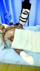 Carpenter  P. Somasiri receiving treatment at hospital and below a  reattached severed hand after surgery. Pix by Reka Tharangani Fonseka
