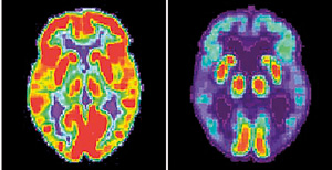 A combination image of brain scans show a normal functioning brain and one with Alzheimers.Reuters