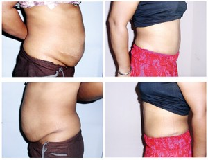 Before and after a tummy tuck