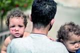 Gaza child: Three wars old