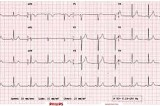 ECG: What it detects and what it doesn't