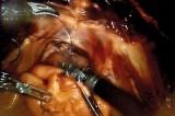 Sri Lanka urged to take up robotic surgery