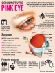 Conjunctivitis cases higher than last year