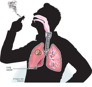 Lung cancer by smoking