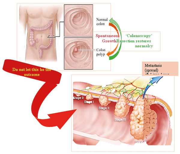 Stage 0 colon cancer