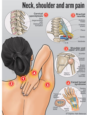 symptoms cervical spondylosis