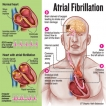 Treat atrial fibrillation before it turns deadly