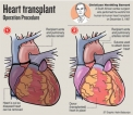 After successful first in heart transplant, Sri Lanka sets sights on lung transplants