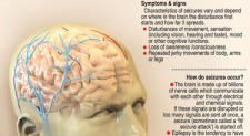 Epilepsy: You can live with it, you can control it